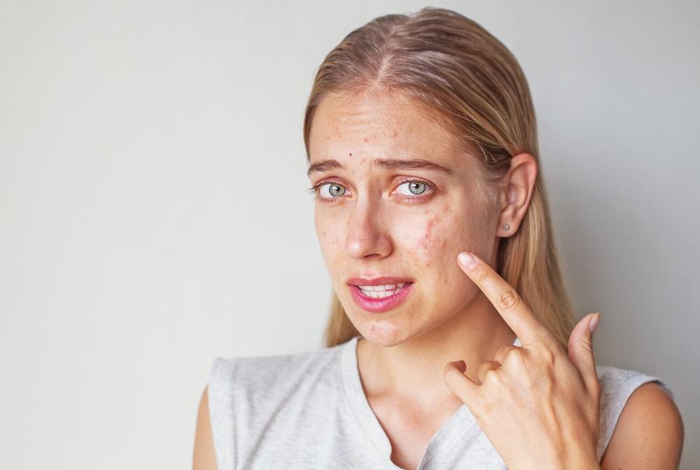 التهابات الجلد ذات انواع عديدة وبعضها يبدأ من الطفولة مثل الاكزيما