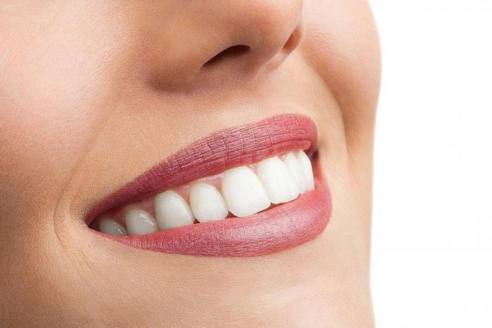 من فوائد الشاي الأخضر والليمون الحفاظ على صحة الأسنان