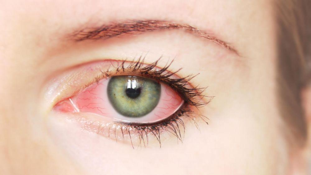 التهابات العيون.. تعرفوا على اسبابها وعلاجها - مجلة هي