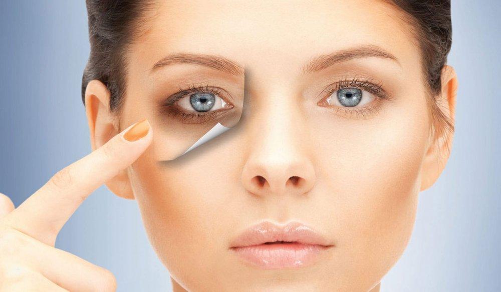كيفية إزالة السواد تحت العين نتيجة السهر