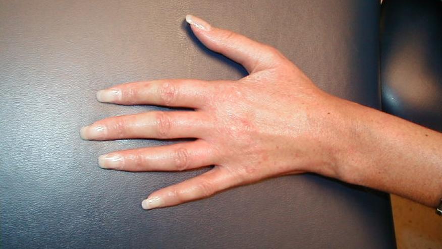 مرض الذئبة الحمراء يسبب تغيراً بلون اليدين في البرد