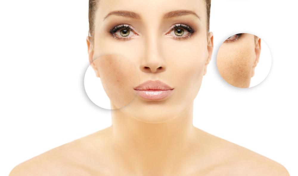 ماسك الطحينة قد يسبب الحساسية المفاجئة او الطفح الجلدي