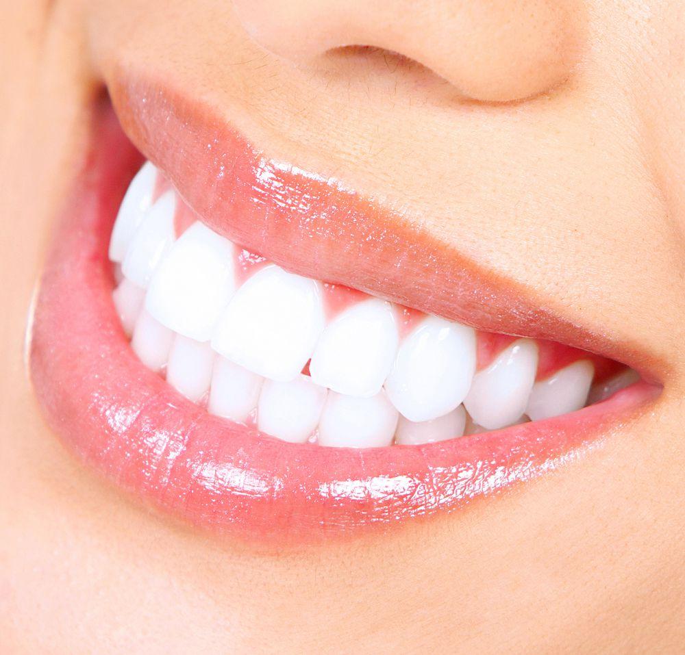 اجعلي أسنانك بيضاء بخلطات طبيعية من صودا الخبز وعصير الليمون