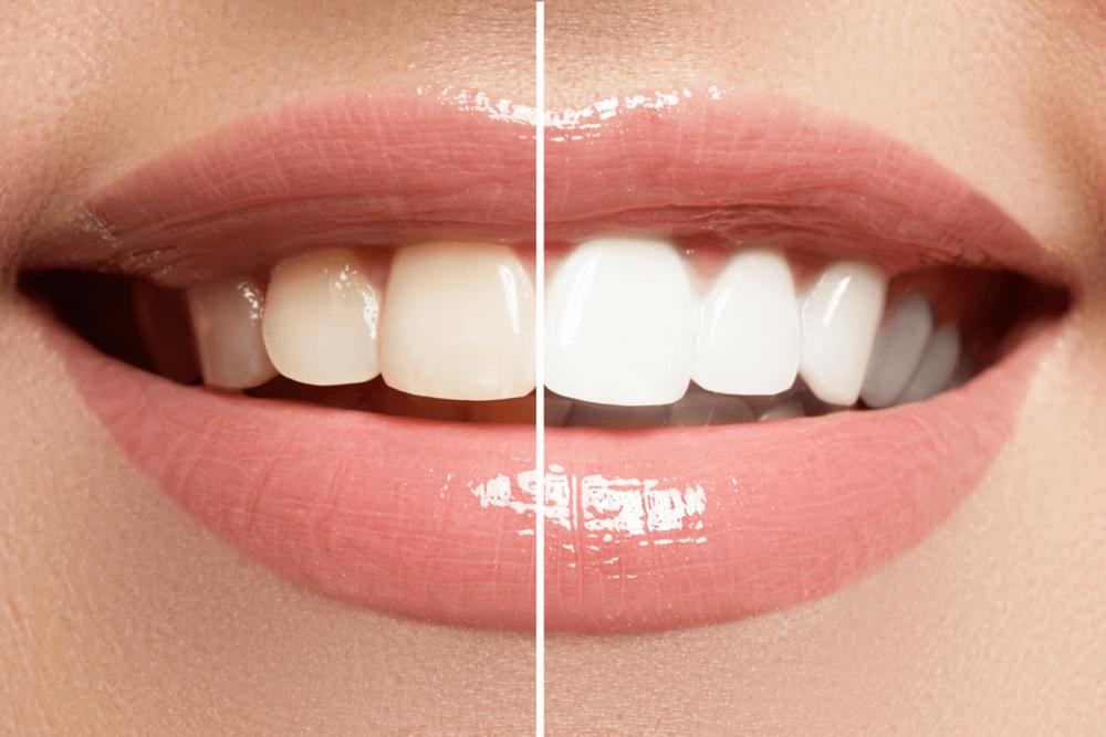 خلطة عصير الليمون وبيكربونات الصوديوم رائع في تبييض الأسنان