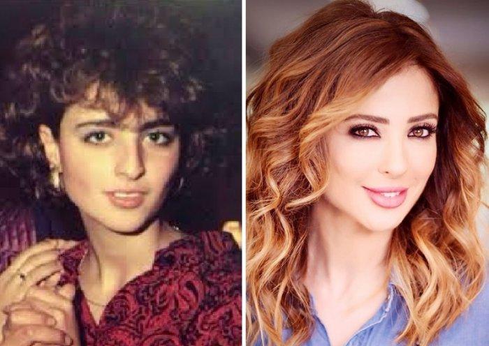 بالصور مذيعات قبل وبعد عمليات التجميل مجلة هي